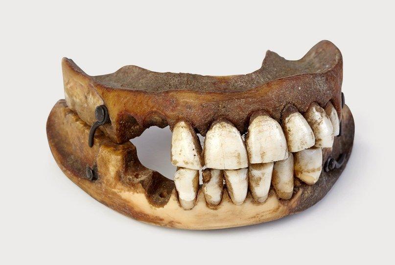 Зубы Ватерлоо